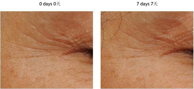 Ang OEM ODM Eye Cream Para sa Anti Wrinkles Anti Aging